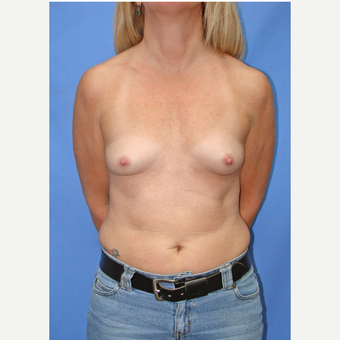 35-44 year old woman treated with Breast Augmentation before 2910387