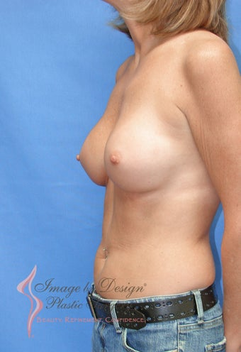 35-44 year old woman treated with Breast Augmentation 2910387