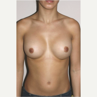 18-24 year old woman treated with Breast Augmentation after 3497879