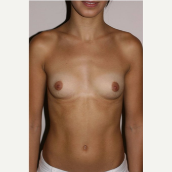 18-24 year old woman treated with Breast Augmentation before 3497879