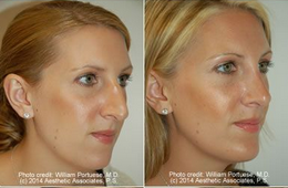 Rhinoplasty and Chin Implant before 91916