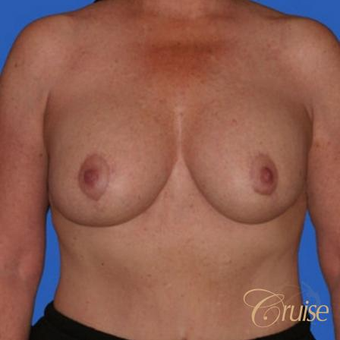 51 year old woman had an anchor breast lift with implants after 3502170