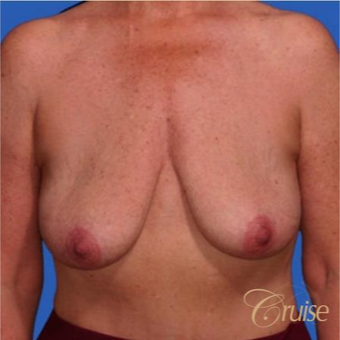 51 year old woman had an anchor breast lift with implants before 3502170