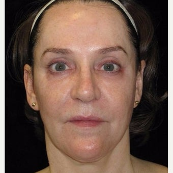 55-64 year old woman treated with Halo Laser before 2296170