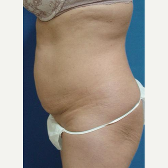 Tummy Tuck and Lipo before 3246465