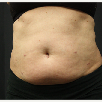 45-54 year old woman treated with SculpSure before 3321174