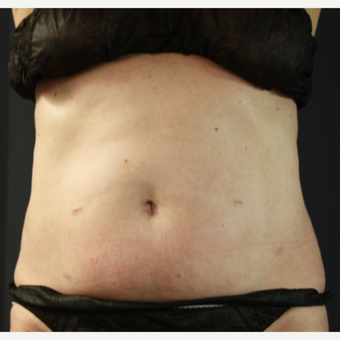 45-54 year old woman treated with SculpSure after 3321174
