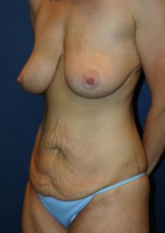 35-44 year old woman treated with Mommy Makeover before 1670269