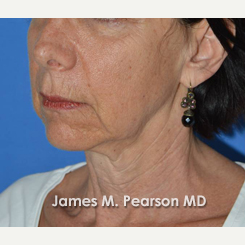 55-64 year old woman treated with Facelift before 3815024