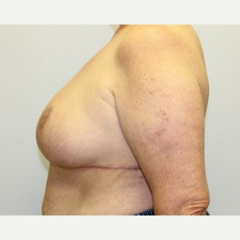 59 year old woman treated with Breast Reduction 1674838