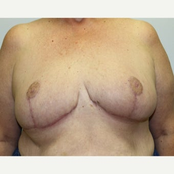 59 year old woman treated with Breast Reduction after 1674838