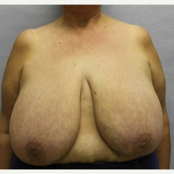 59 year old woman treated with Breast Reduction before 1674838