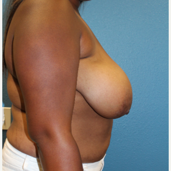 25-34 year old woman treated with Breast Reduction before 3630533