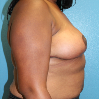 25-34 year old woman treated with Breast Reduction after 3630533