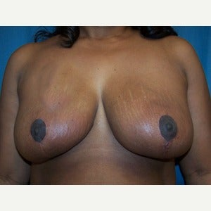 Breast Reduction after 2185357