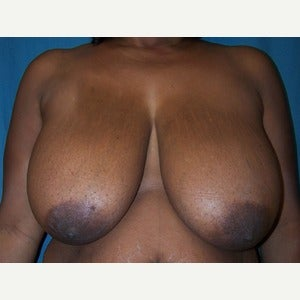Breast Reduction before 2185357
