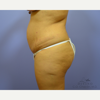 25-34 year old woman treated with Liposuction before 3421511