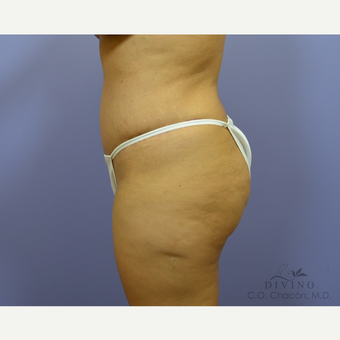 25-34 year old woman treated with Liposuction after 3421511
