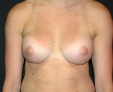 Breast Implants after 3545094