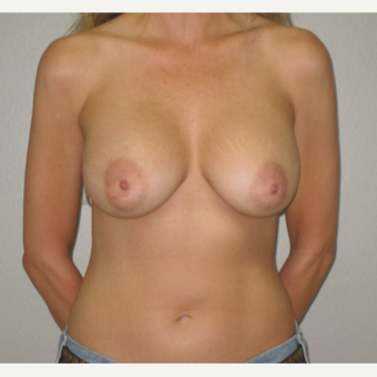 35-44 year old woman treated with Breast Implants after 3666767