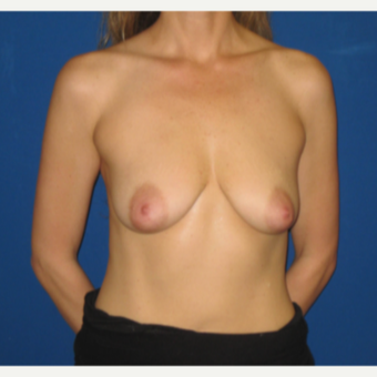 35-44 year old woman treated with Breast Implants before 3666767