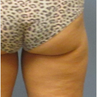 45-54 year old woman treated with CoolSculpting before 3763821
