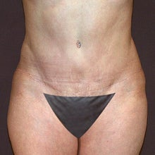 43 Year Old Female with a Revised Tummy Tuck