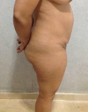 35 years old female treated for abdomen and back lipodistrophy