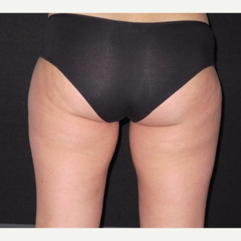 25-34 year old woman treated with CoolSculpting Outer Thigh after 2218510