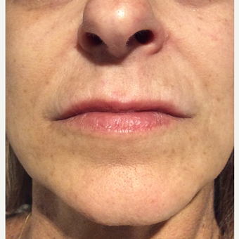 45-54 year old woman treated with Restylane Silk after 3459274