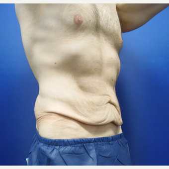 25-34 year old man treated with Tummy Tuck before 3365988