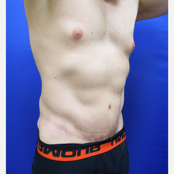 25-34 year old man treated with Tummy Tuck after 3365988