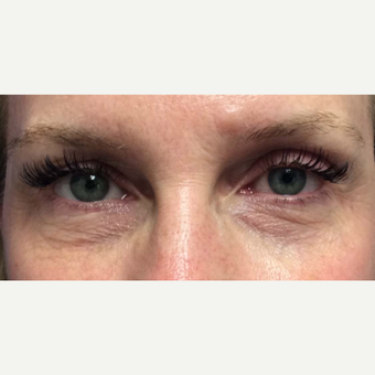 Laser Resurfacing of the Lower Eyelids for this 48 Year Old Woman before 3305569