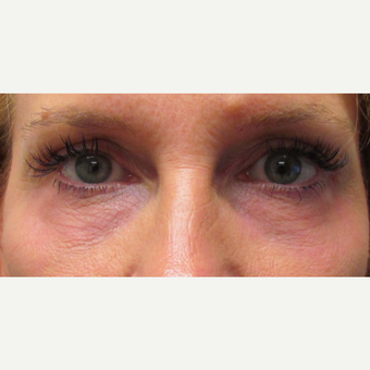 Laser Resurfacing of the Lower Eyelids for this 48 Year Old Woman after 3305569
