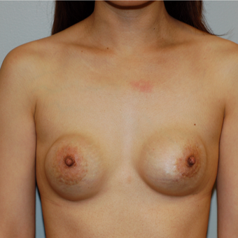35-44 year old woman treated with Breast Implant Revision before 3129259