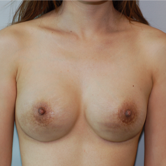 35-44 year old woman treated with Breast Implant Revision after 3129259