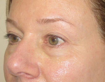 46 year old with eyelid bags undergoing filler treatment before 811417