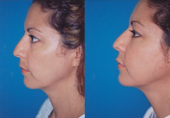37-year-old woman treated with Facial Fat Transfer. after 574290