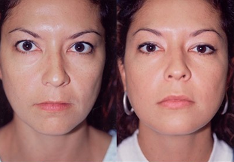 37-year-old woman treated with Facial Fat Transfer. before 574290