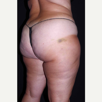 45-54 year old woman treated with Cellulaze after 3280743
