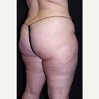45-54 year old woman treated with Cellulaze before 3280743