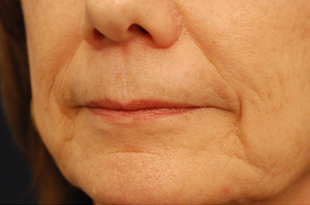 Restylane injectable filler before 82770