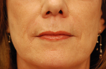 Restylane injectable filler 82770
