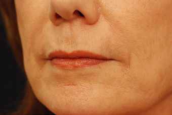Restylane injectable filler after 82770
