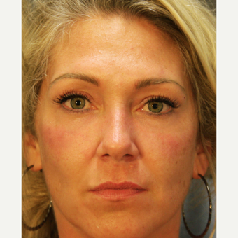 35-44 year old woman treated with Voluma after 3709639