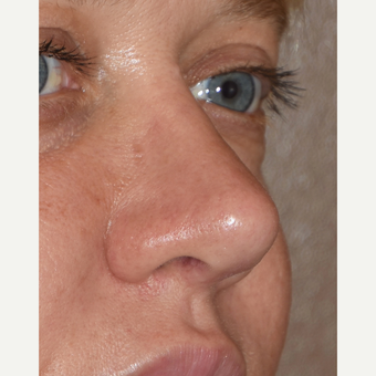 35-44 year old woman treated with Revision Rhinoplasty after 3438422