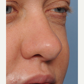 35-44 year old woman treated with Revision Rhinoplasty before 3438422