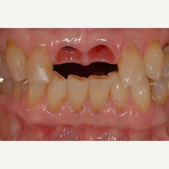 65-74 year old woman treated with Dental Implants