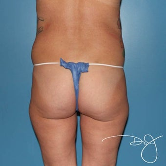25-34 year old woman treated with Butt Augmentation before 1770183