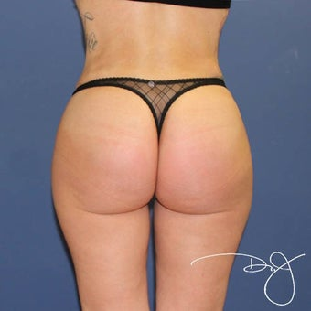 25-34 year old woman treated with Butt Augmentation after 1770183
